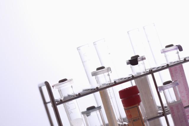 輸血検査(血液型を調べる)