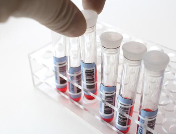腫瘍マーカーAFPが基準値より高い場合に考えられる病気